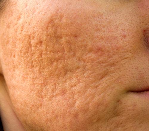 Acne Scar Treatments