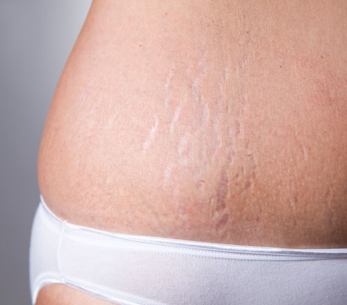 stretch-mark-therapy