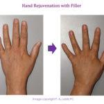 Hand Rejuvenation  with Filler