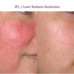 IPL / Laser Redness Reduction