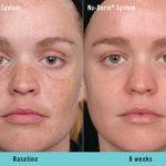 Nu-Derm® System - Baseline to 8 weeks