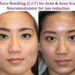 Micro Needling for acne and acne scars C.I.T.