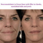 Neuromodulator to frown lines with filler to cheeks, nasolabial folds and jowls