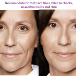 Neuromodulator to frown lines, filler to cheeks, nasolabial folds and chin