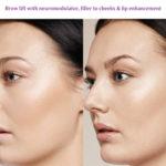 Brow lift with neuromodulator, filler to cheeks & lip enhancement