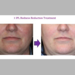 1 IPL Redness Reduction Treatment
