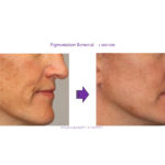 Pigmentation Removal - 1 session