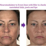 Neuromodulator to frown lines with filler to cheeks, nasiolabial folds, jowls and lips