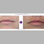 Lip Augmentation with Emervel