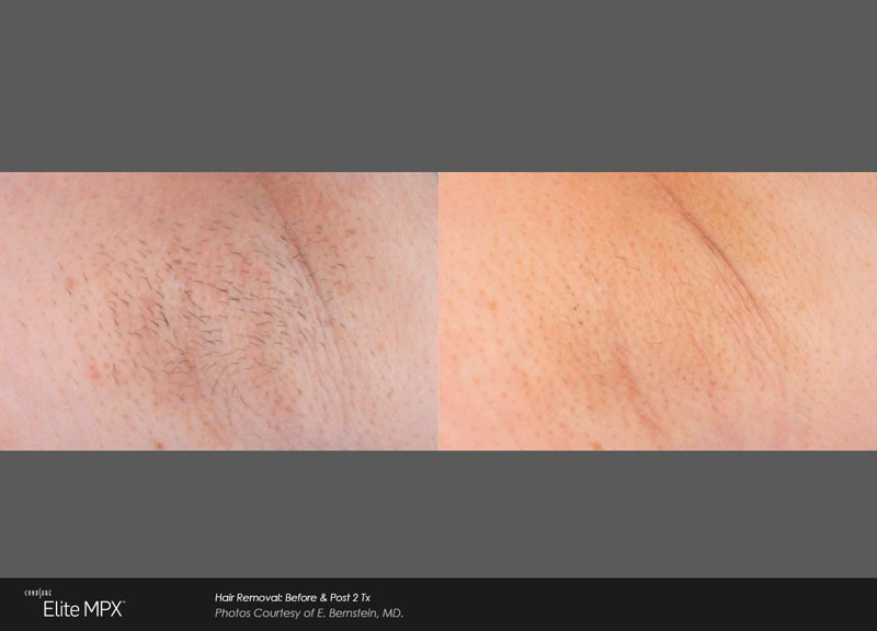 Hair Removal: Before & Post 2 Tx