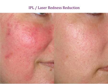 IPL / Laser Redness Reduction