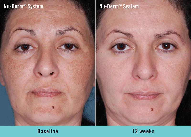 Nu-Derm® System - Baseline to 12 weeks