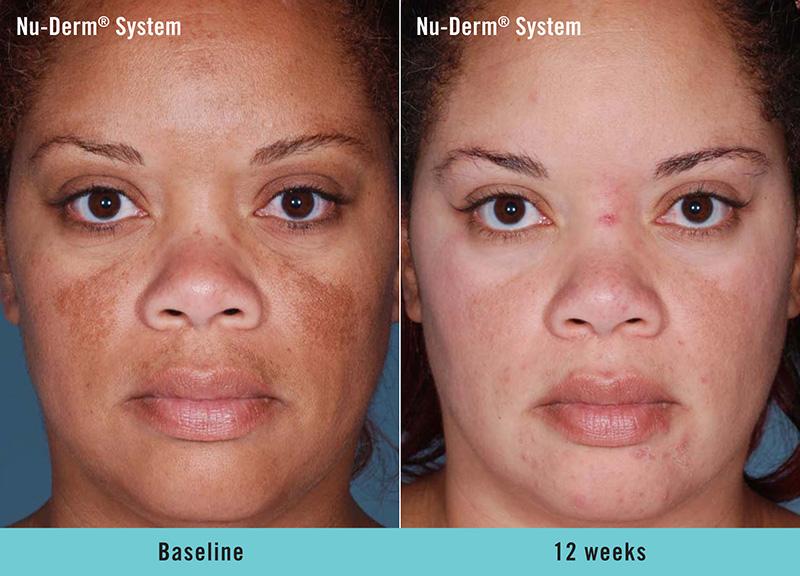 Nu-Derm® System - Baseline to 24 weeks