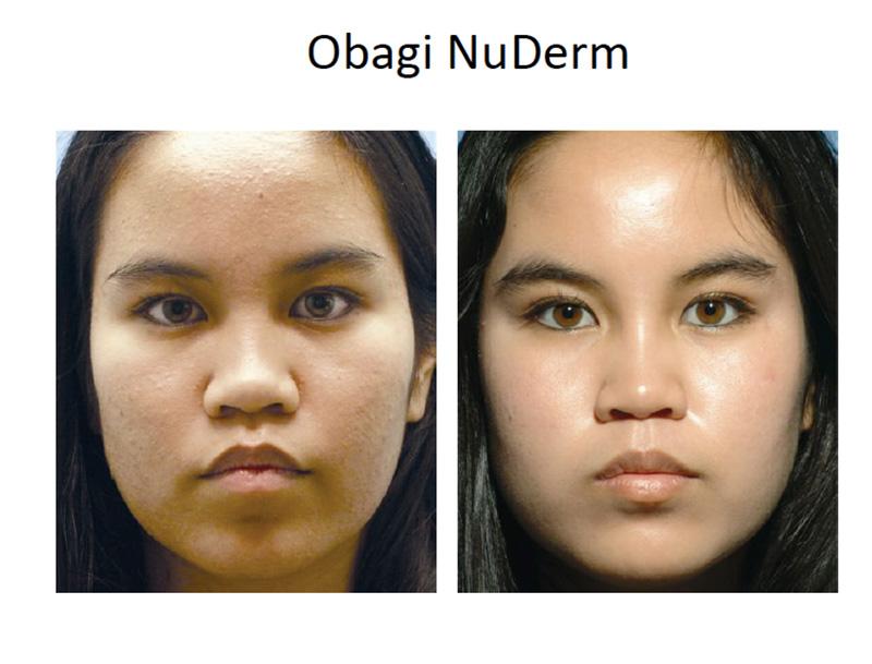 Obagi NuDerm