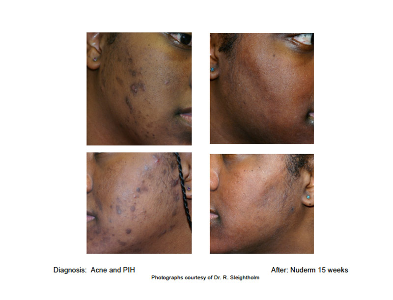 acne and acne and PIH Nuderm 15 weeks after