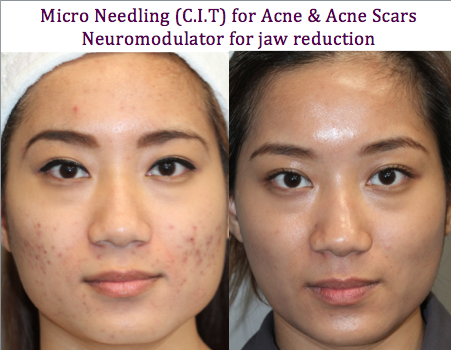 Micro Needling for acne and acne scars