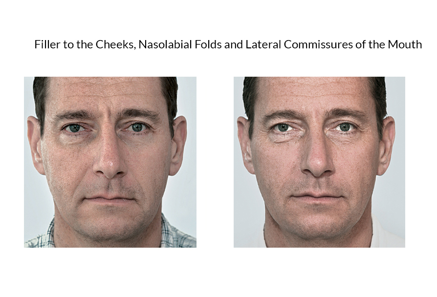 Filler to the Cheeks, Nasolabial Folds and Lateral Commissures of the Mouth