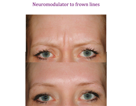 Neuromodulator to frown lines