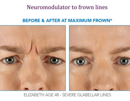 Neuromodulator to frown lines | Before and After at Maximum Frown
