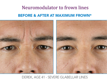 Neuromodulator to frown lines   Before and After at Maximum Frown