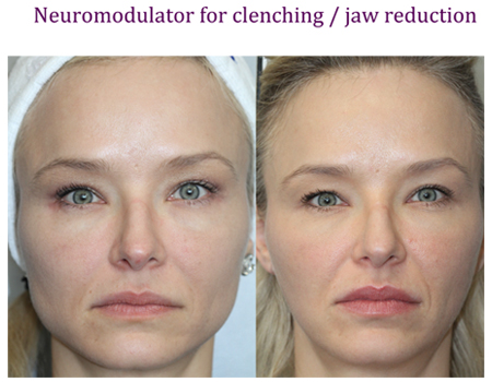 Neuromodulator for clenching / jaw reduction