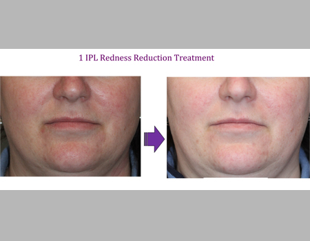 1 IPL Redness Reduction Treatment