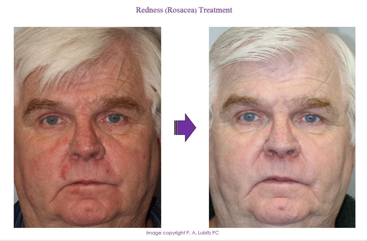 Redness (Rosacea) Treatment
