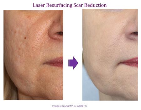 Laser resurfacing Scar Reduction