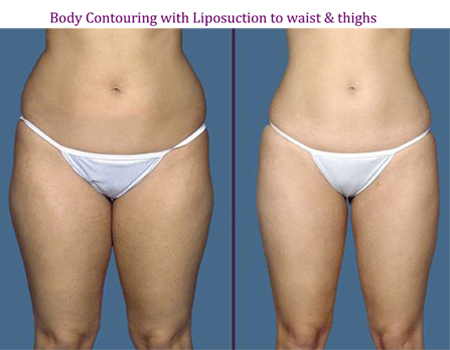 Body Conturing with Liposuction to waist & thighs