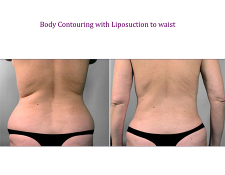 Body Conturing with Liposuction to waist