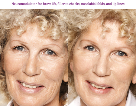 Neuromodulator for brow lift, filler to cheeks, nasolabial folds, and lip lines