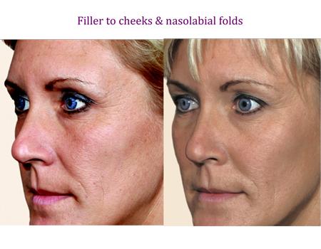Filler to cheeks & nasolabial folds