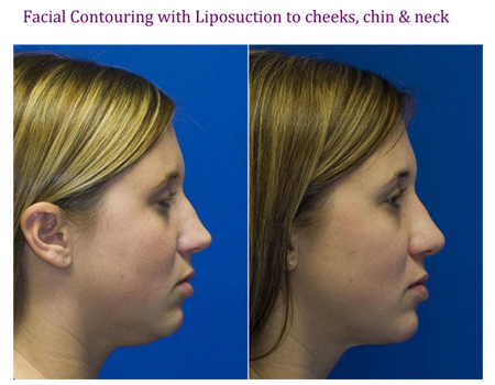 Facial Conturing with Liposuction to cheeks, chin & neck