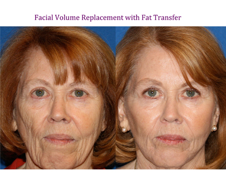 Facial Volume Replacement with Fat Transfer