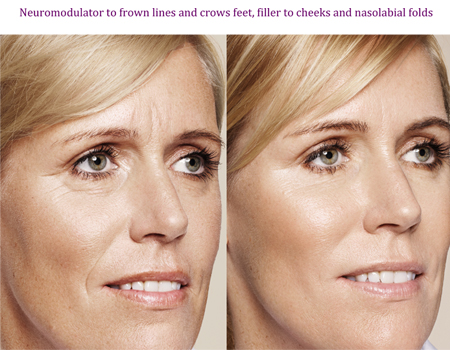 Neuromodulator to frown lines and crows feet, filler to cheeks and nasolabial folds