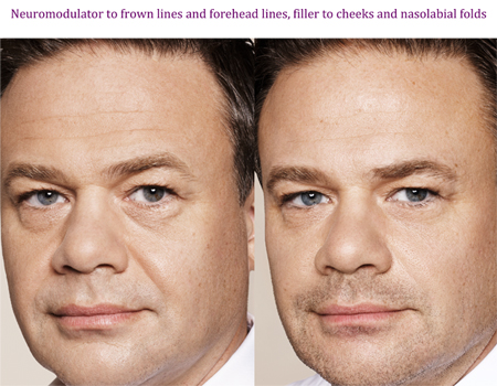 Neuromodular to frown lines and forehead lines, filler to cheeks and nasolabial folds