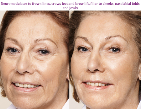 Neuromodular to frown lines, crows feet and brow lift, filler to cheeks, nasolabial folds and jowls