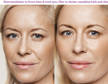 Neuromodulator to frown lines & tired eyes, filler to cheeks, nasolabial folds and chin