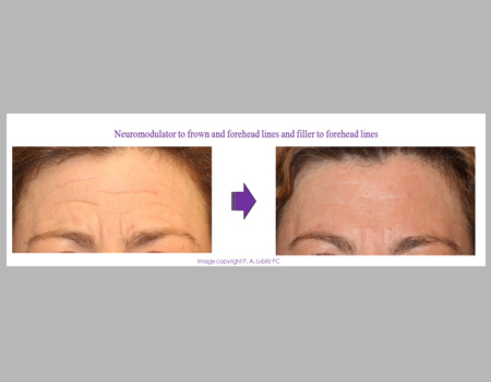 Neuromodular to frown and forehead lins and filler to forehead lines