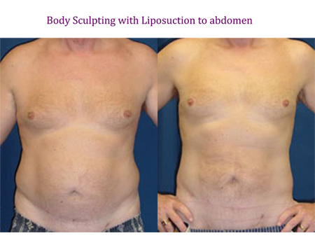Body Sculpting with Liposuction to abdomen