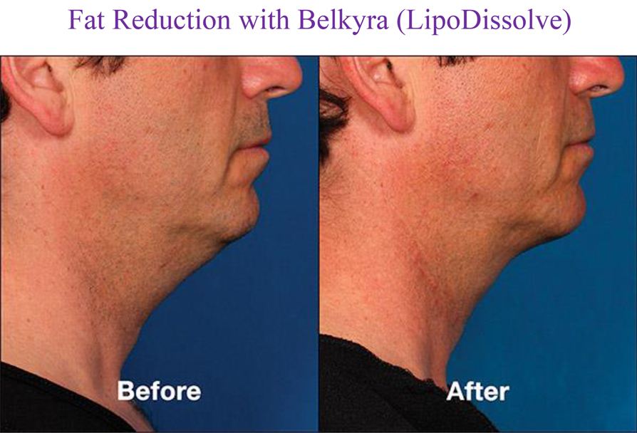 Fat Reduction with Belkyra (LipoDissolve)