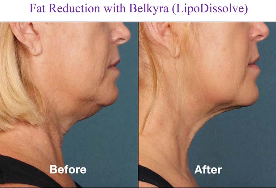 Fat Reduction with Belkyra (LipoDissolve)